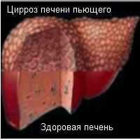 Декомпенсированый цирроз печени