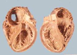 Алкогольная кардиомиопатия: следствие поражения сердца этанолом ...