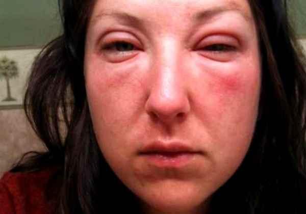 Что может случиться с лицом после алкоголя? Фото сильного отека и цвета кожи