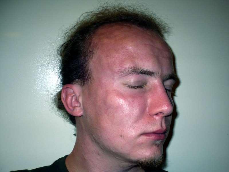 Красное лицо лечение от алкоголизма