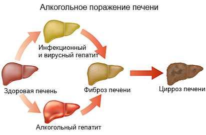 первая стадия цирроза печени