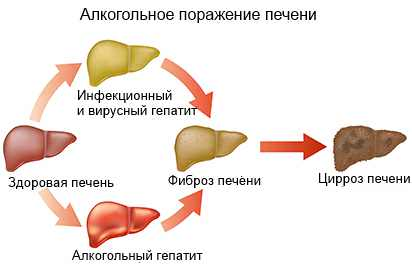 Гепатит от алкоголя - предвестник цирроза печени - Освобождение