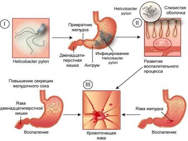 Маалокс при язве желудка